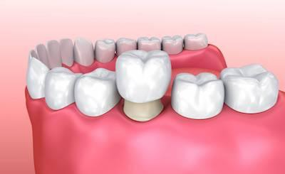 Graphic of Dental Crown going On Tooth | Dentist in Ramsgate NSW