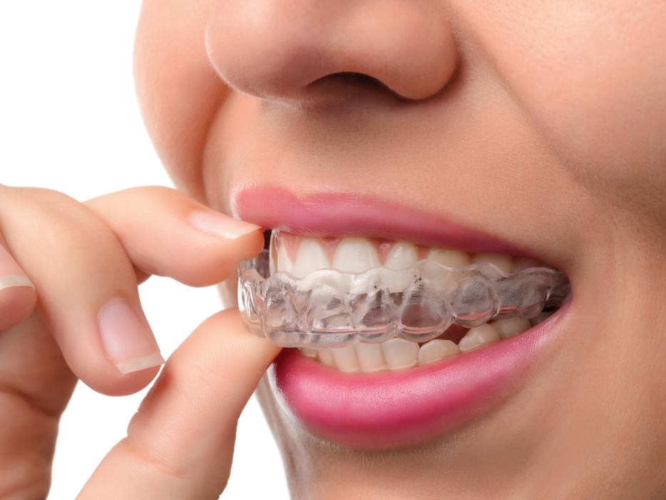 Woman putting on Invisalign clear aligners near Ramsgate NSW