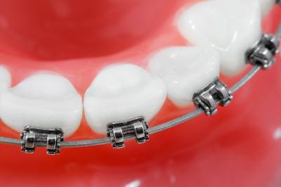 Close up of bottom teeth with traditional braces in Ramsgate NSW