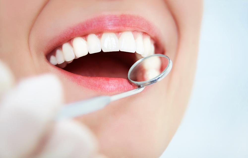 Close up of dental patients smile after professional teeth whitening near Kogarah